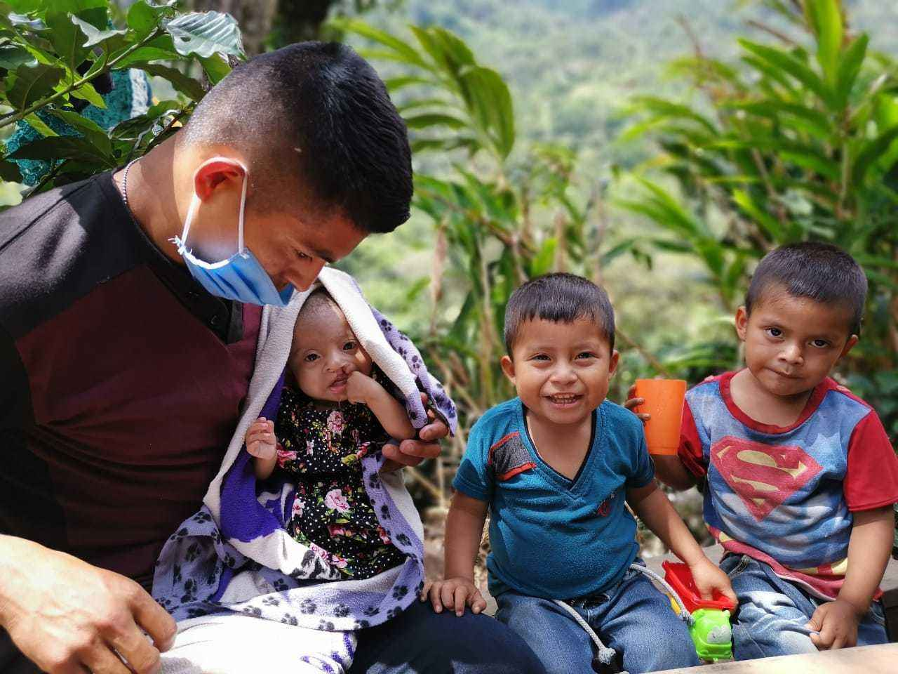 FEED A GUATEMALAN CLEFT CHILD AND SAVE A LIFE image