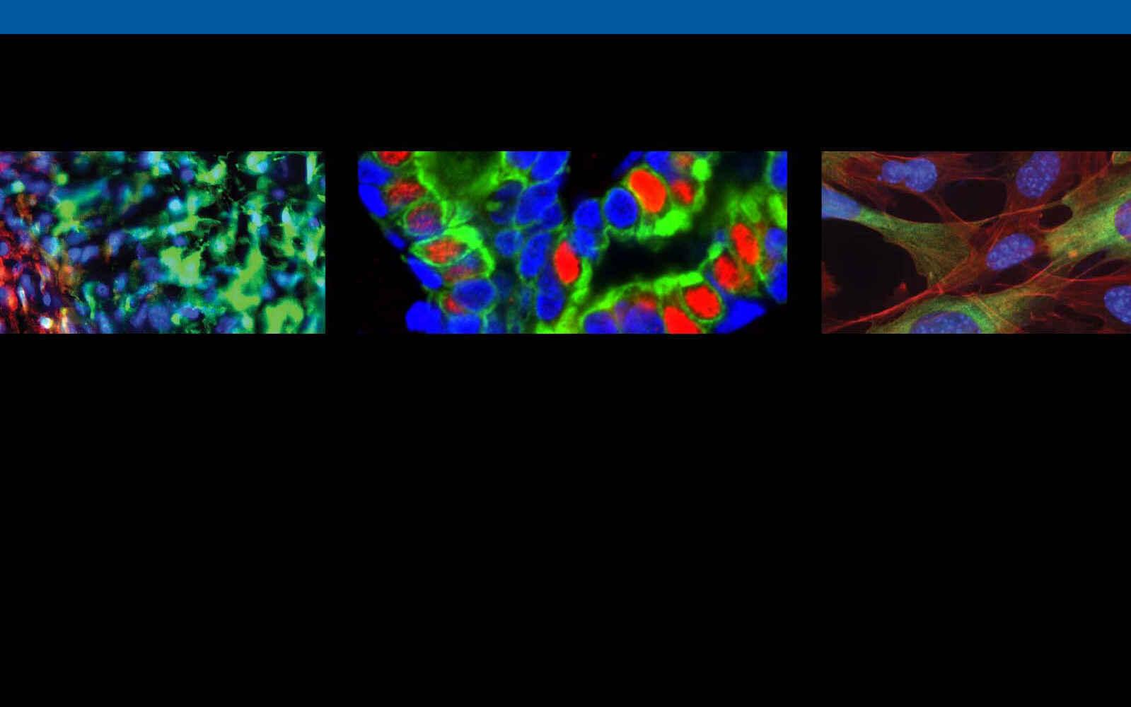 Salk Cancer Center Translational Fund image