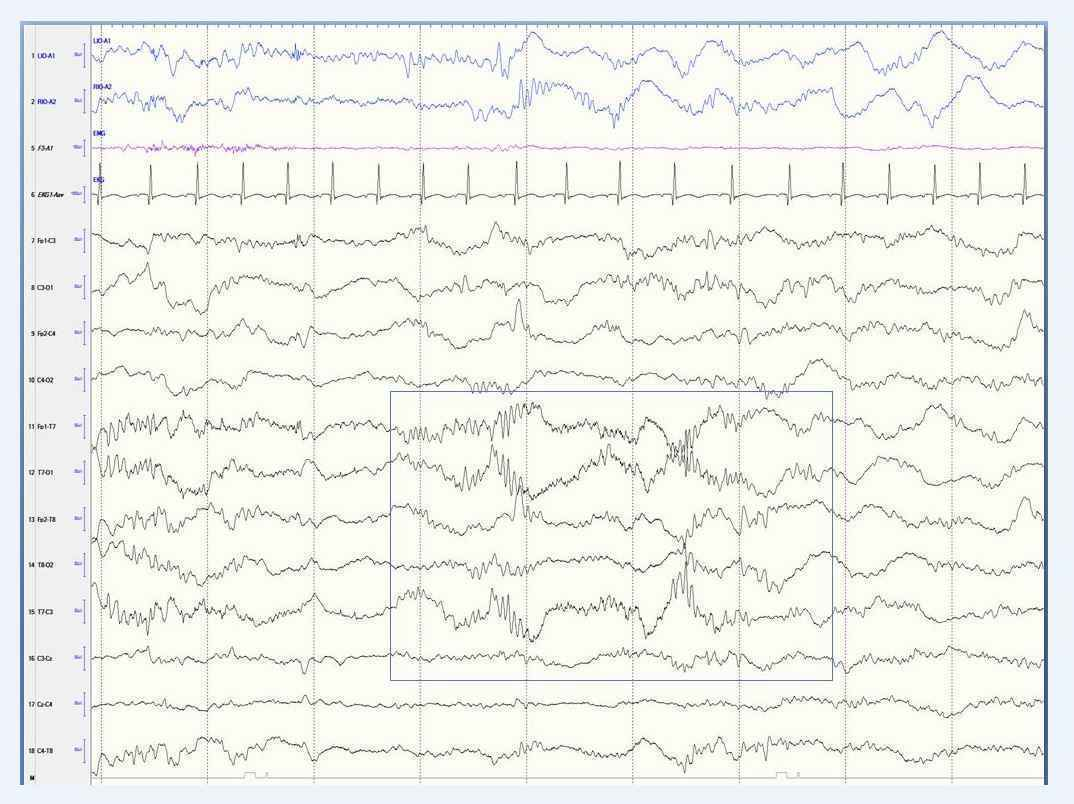 Pediatric EEG evaluation requires special skills.  image