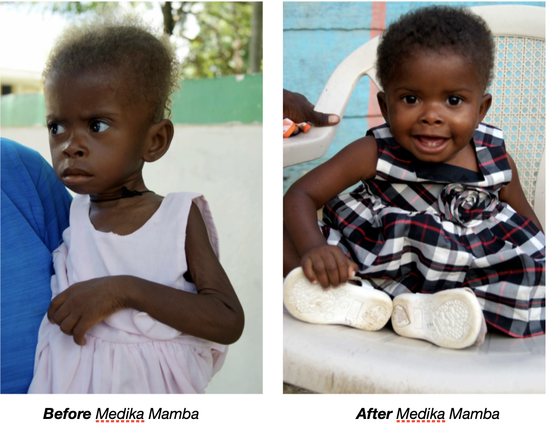 Help treat malnourished children in Haiti image